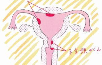 女性が悩む子宮まわりの身体の不調に注目!